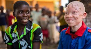 Making education safe for children with albinism in Malawi |